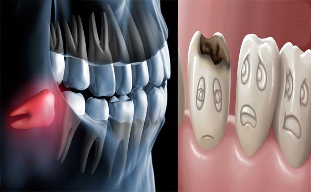 خوراکی های مضر برای دندان