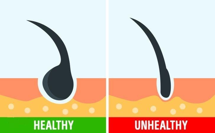 چند راهکار ساده برای ترمیم موهای آسیب دیده